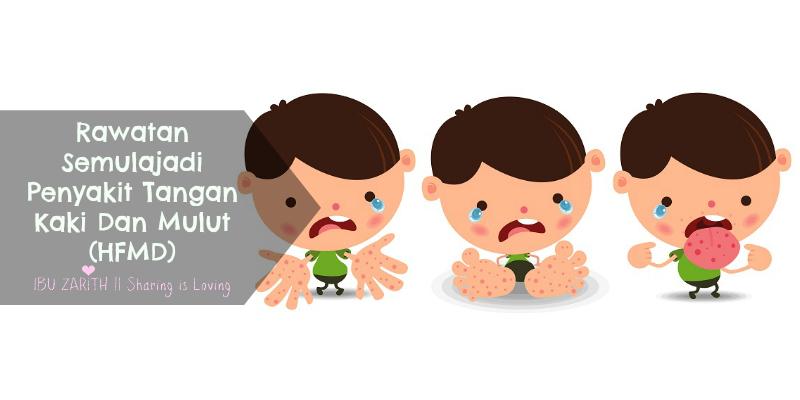 Rawatan Semulajadi Untuk Penyakit Tangan Kaki Dan Mulut (HFMD)